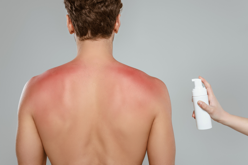 Man with sunburn getting a topical cream applied to his back